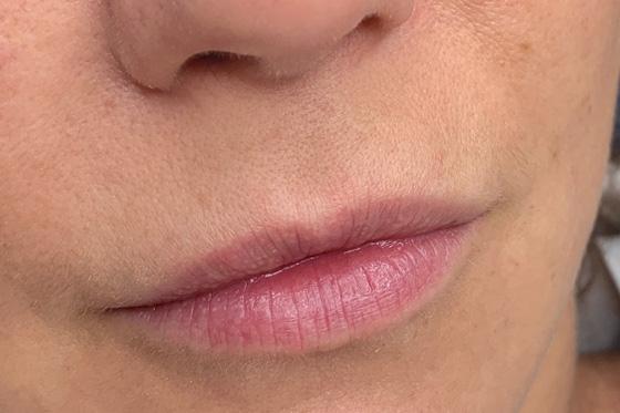 Permanent Make-up - Aquarell Lips - vorher | PRETTIFY - Hamburg